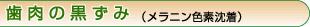 歯肉の黒ずみ(メラニン色素沈着)